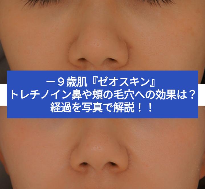 【ゼオスキン】セラピューティックの効果!トレチノインは鼻や頬の毛穴に効果ある?経過を写真で解説!!