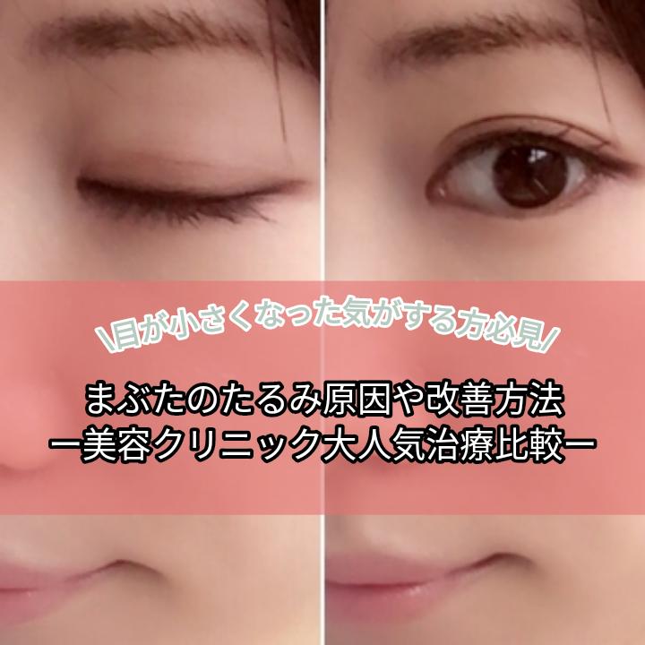 『目が小さくなった気がする方必見』1分でわかる!まぶたのたるみ原因や改善方法。美容クリニック大人気治療比較。